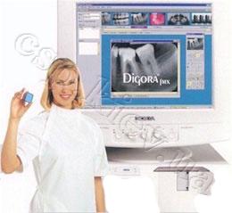 Интраоральная рентгенография зубов