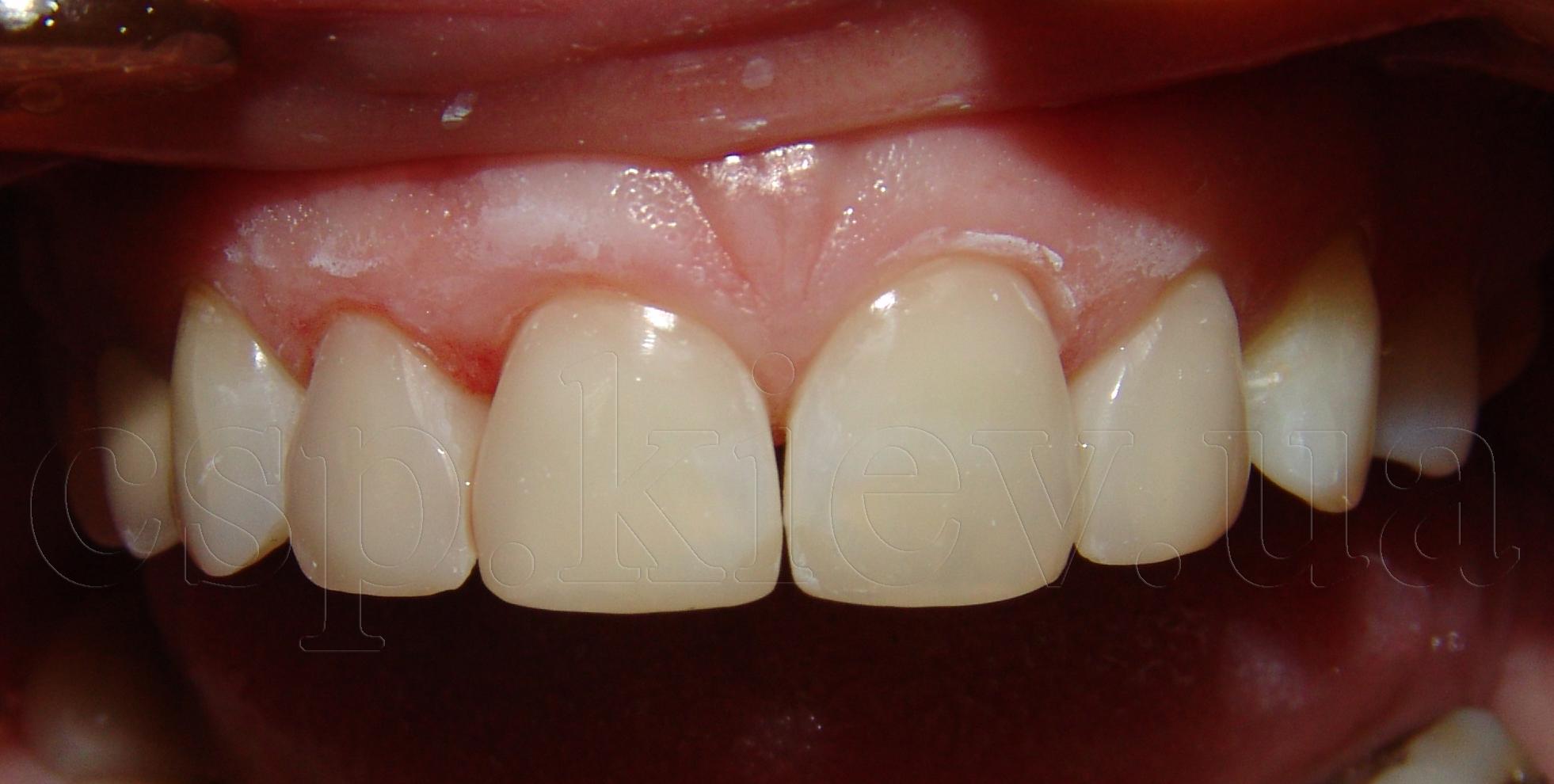 Реставрація фронтальної групи зубів
