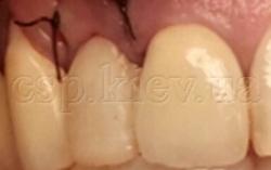 Негайна імплантація з тимчасовим протезуванням, система імплантів MEGAGEN