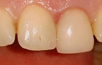 Одномоментна імплантація в лунку видаленого 21 зуба з негайним тимчасовим протезуванням(дентальний імплант Megagen, тимчасова коронка - власний зуб)