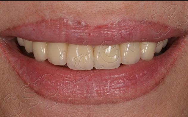 Відновлення функції та естетики зубних рядів з використанням безметалевих коронок та дентальних імплантів Ankylos