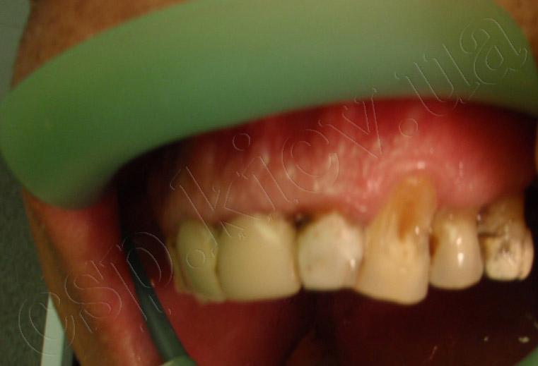 Реставрація 22 та 23 зубів з імітацією ясен на 23 зубі