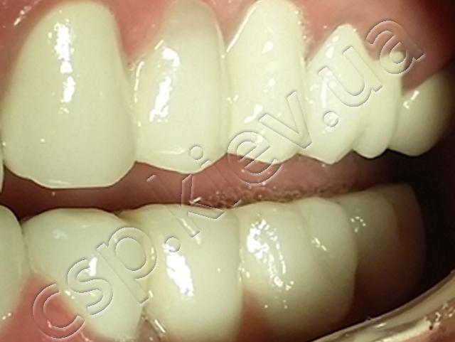 Комплексна реабілітація зубощелепного апарату із застосуванням дентальних імплантантів