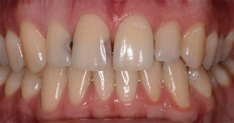 Контактний карієс 11 та 12 зубів