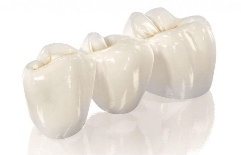 Відновлeння анатомічноі форми зубів